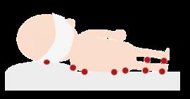 Puntos de aparición de úlceras en personas mayores